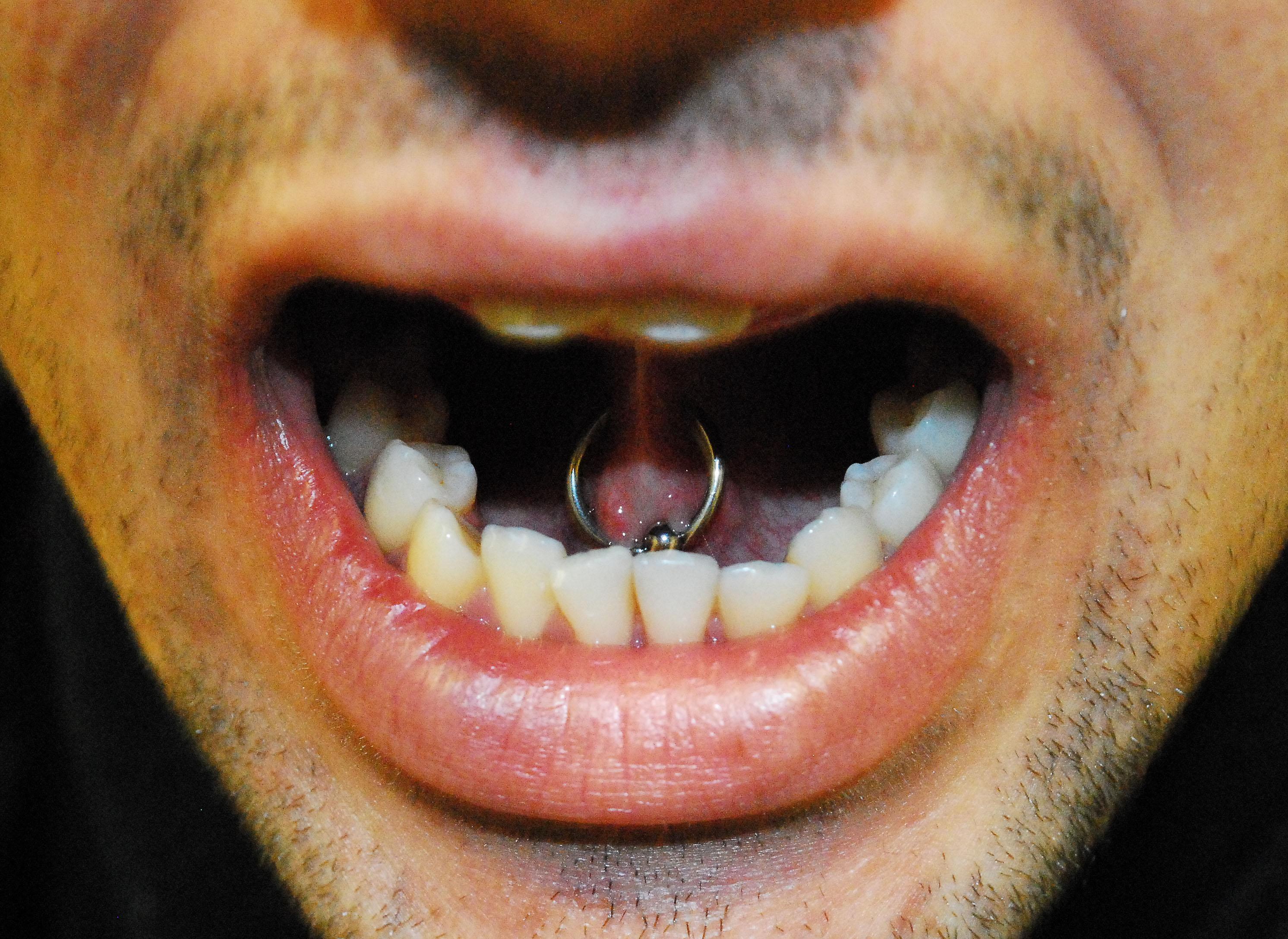web tongue piercing diagram of a delta landform dallas eastside tattoo