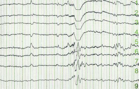 Epilepsy - EEG