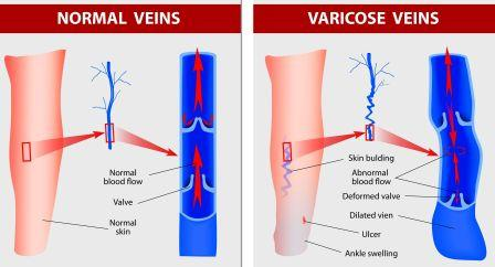 Normal vein Vs Varicose vein