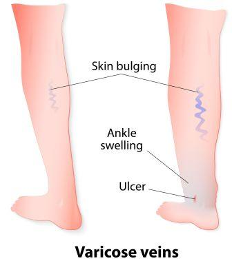 Varicose vein symptoms and stages