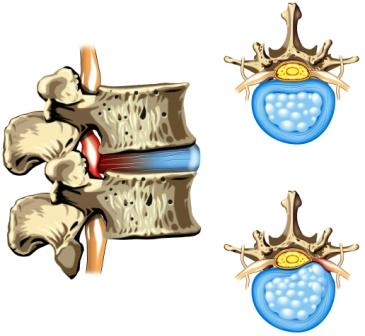 HERNIA OF THE DISC - SLIPPED DISC