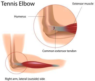 Tennis elbow explanation