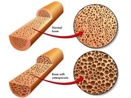 Osteoporosis - low bone density