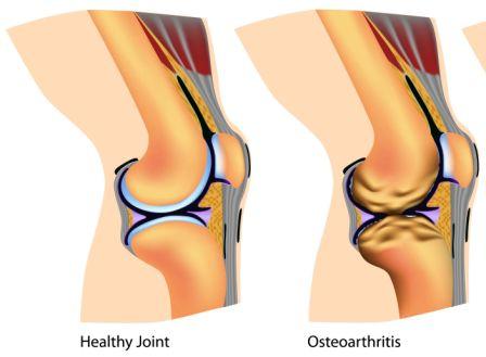 arthritis of knee joint