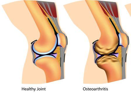 osteo arthritis