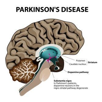 Parkinsons disease pathology