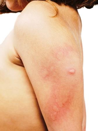 allergic skin rash, hive