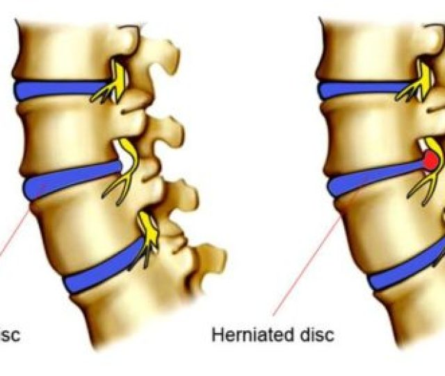 Treatment For A Herniated Disc Depends On A Lot Of Factors Such As The Severity Of The Condition Symptoms And Possible Complications