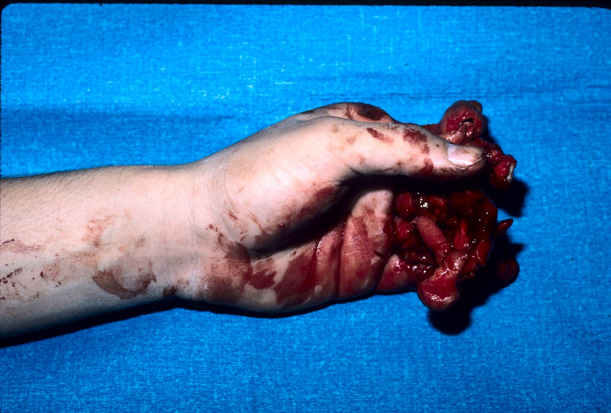 Trauma Multiple finger degloving treated with medial