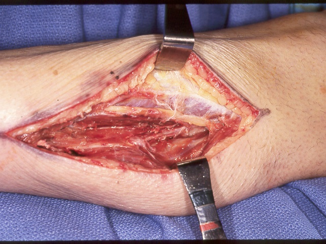 Infection Rheumatoid MCP implant infections seeded from chronic distant abscess