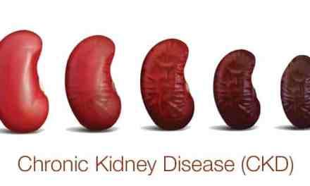 Diet for chronic kidney disease