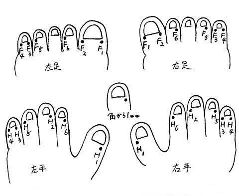 井穴刺絡図