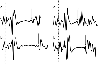 Evidence for Acute Electrophysiological and Cognitive