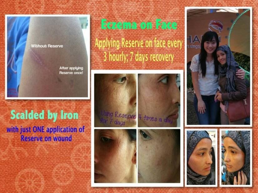 jeunesses-reserve-acne