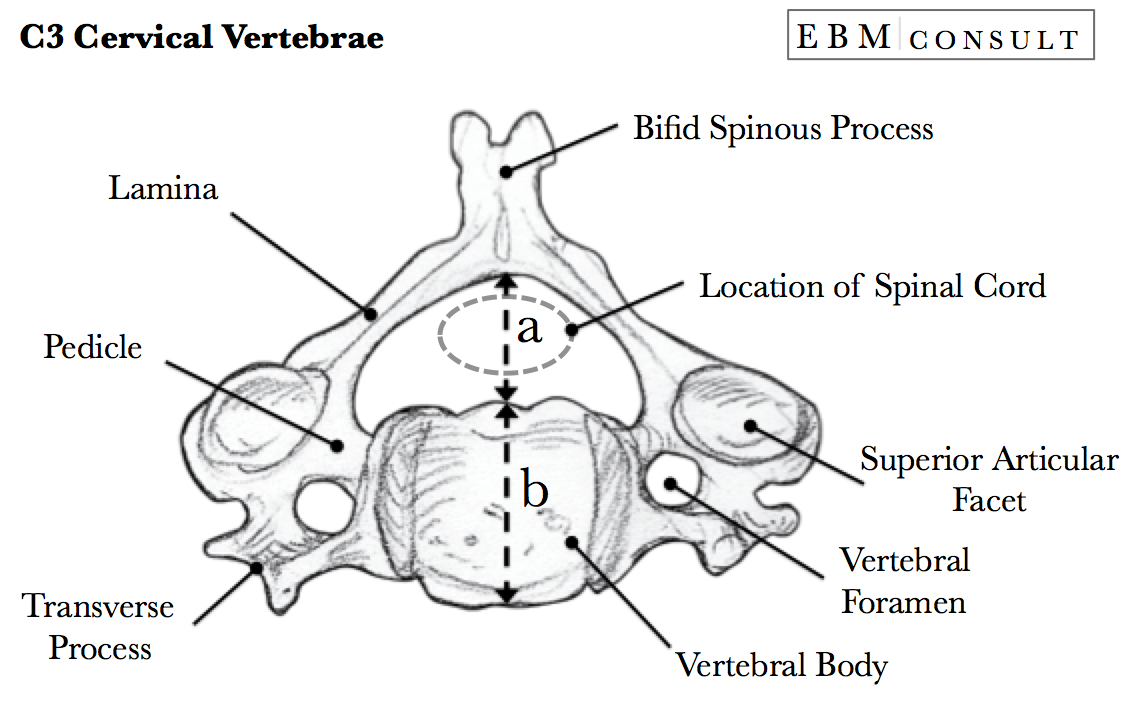 cervical vertebrae diagram directv genie 2 wiring torg ratio for determining presence of spinal canal stenosis