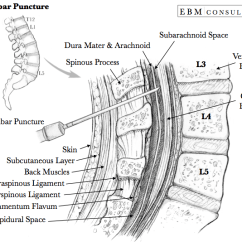 Lumbar Puncture Diagram Two Way Lighting Wiring Uk Procedure How To Do A Anatomy Needle Placement Image