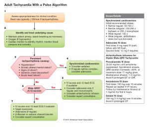 algorito de manejo de taquicardia