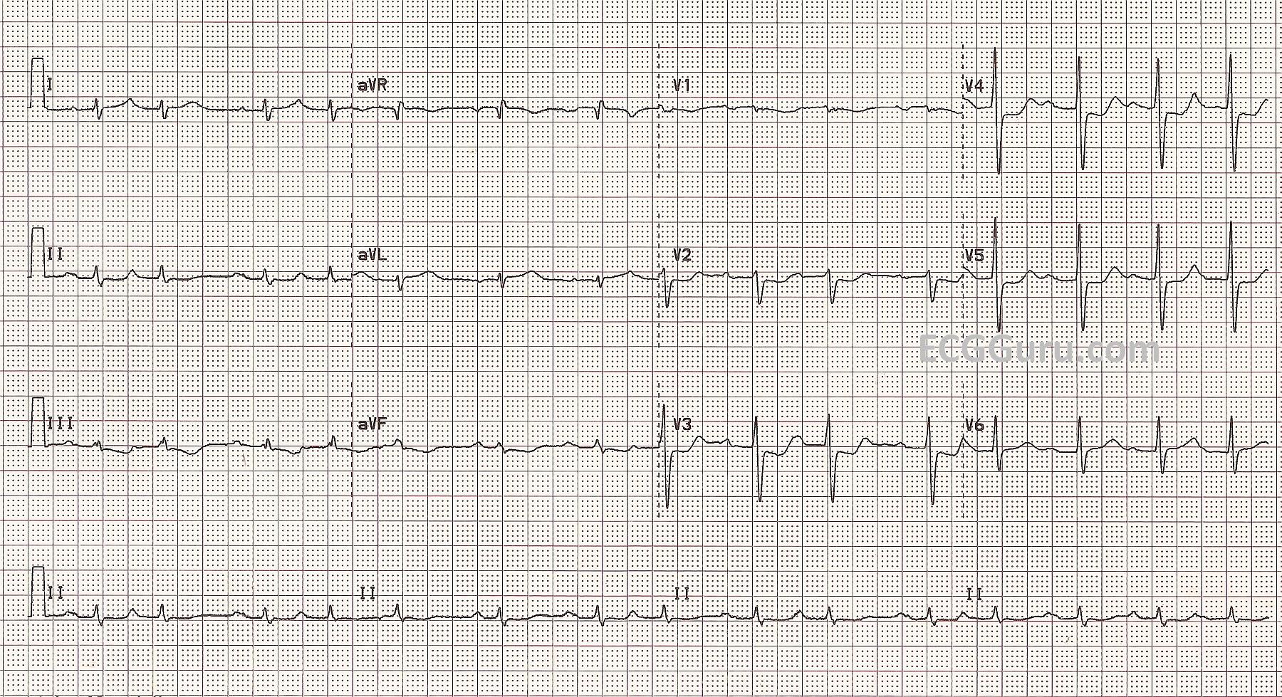 Acute M I Occluded Stents In Left Obtuse Marginal Artery Ecg Guru