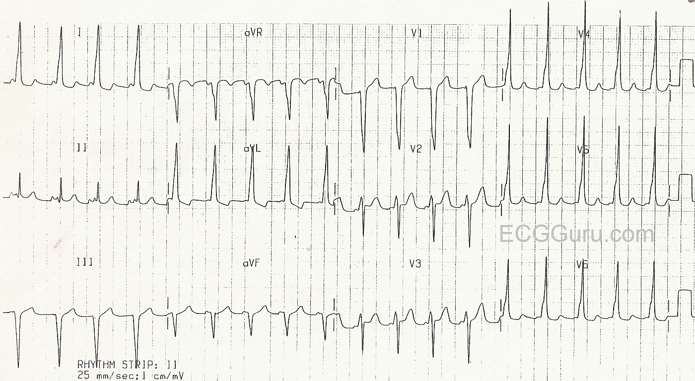 Wolff-Parkinson-White Syndrome in a Four-Year-Old Girl