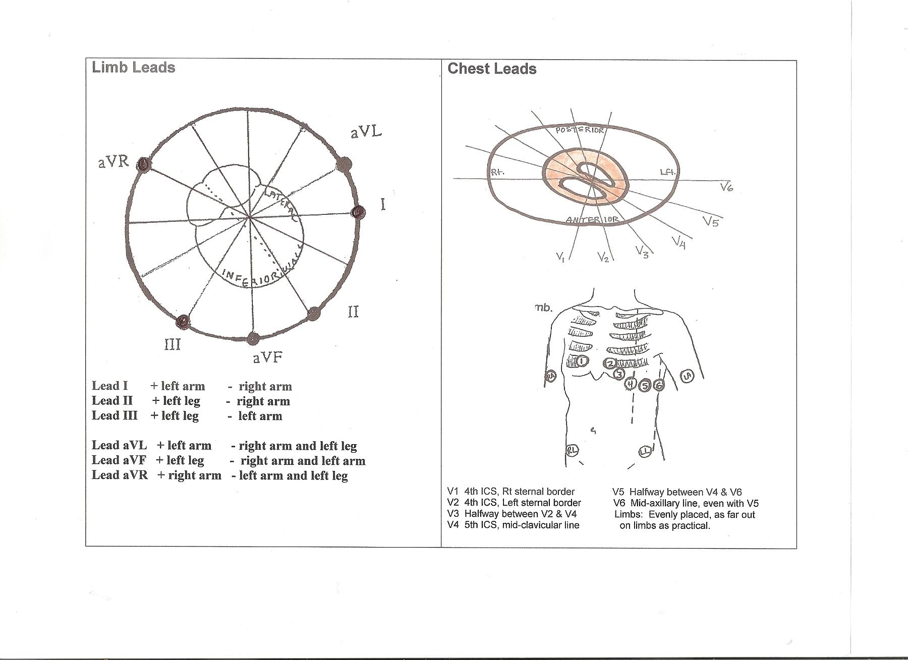 Diagram Of Frontal Amp Horizontal Plane Leads Ecg Guru