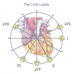 12 Lead Ekg Placement Diagram 2005 Honda Civic Ignition Wiring Limb Leads Ecg Guru Instructor Resources