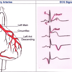 Heart Diagram Coronary Sinus How To Do A Tree Arteries And Ecg Signs Of M I