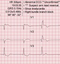 heart rate 50 wm [ 2139 x 794 Pixel ]