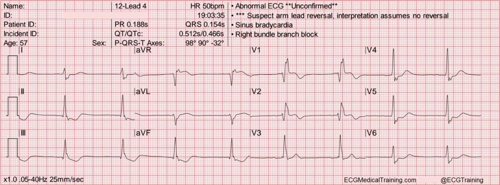 medium resolution of heart rate 50 wm