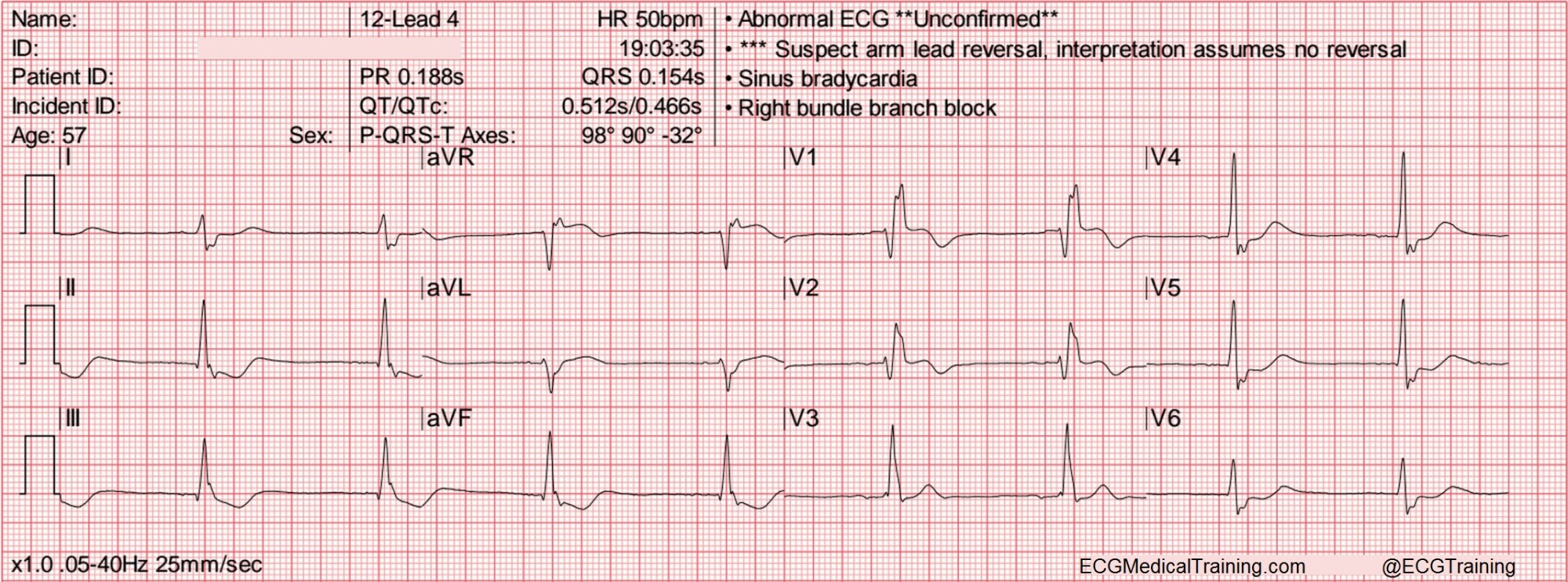 hight resolution of heart rate 50 wm