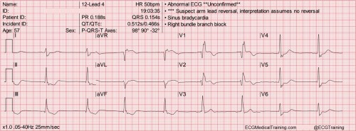 small resolution of heart rate 50 wm
