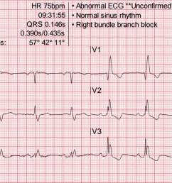 heart rate 75 wm [ 2075 x 785 Pixel ]