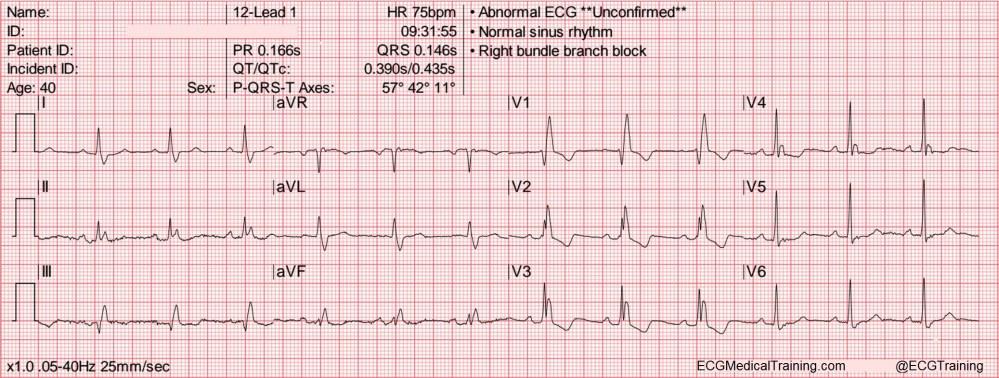 medium resolution of heart rate 75 wm