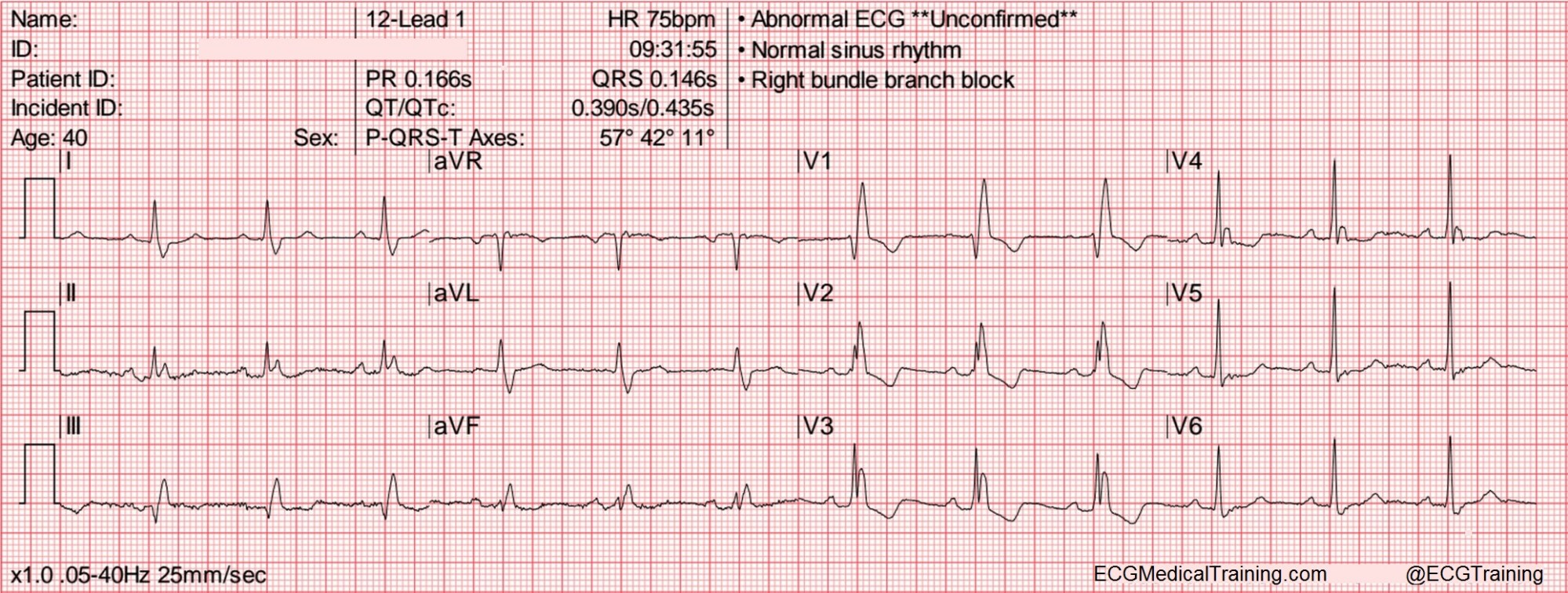 hight resolution of heart rate 75 wm