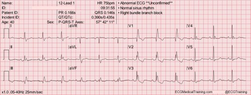 small resolution of heart rate 75 wm