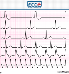 large block method heart rate [ 1658 x 1244 Pixel ]