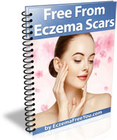Free From Eczema Scars