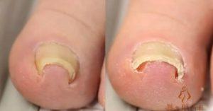 nixia mesa derma