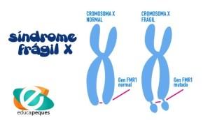 síndrome del frágil X, FMR1, Trastorno del espectro autista, TEA, hiperactividad, Discapacidad intelectual