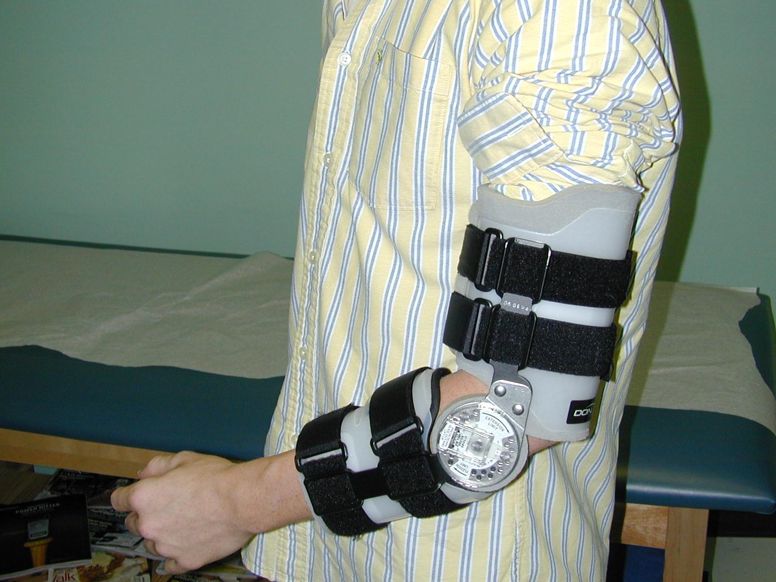 hight resolution of  ucl brace