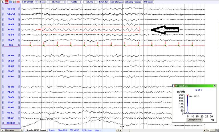 File:Midline theta rhythm (source).png - EEGpedia