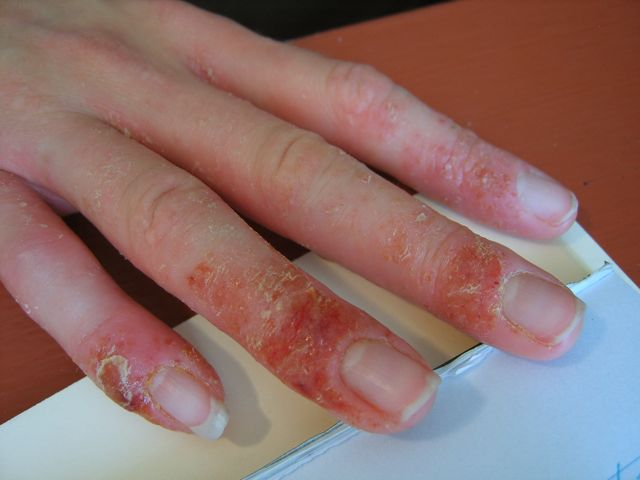 See Pictures of Eczema before and after Chinese Herbal ...