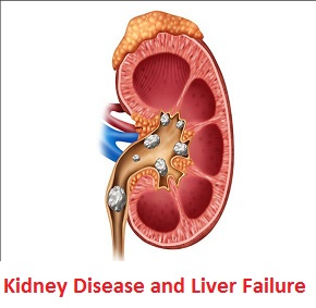 Photo of How to treat Kidney Disease and Liver Failure with Natural Herbs
