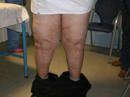 Tratamiento fisioterpico de la artrosis de rodilla