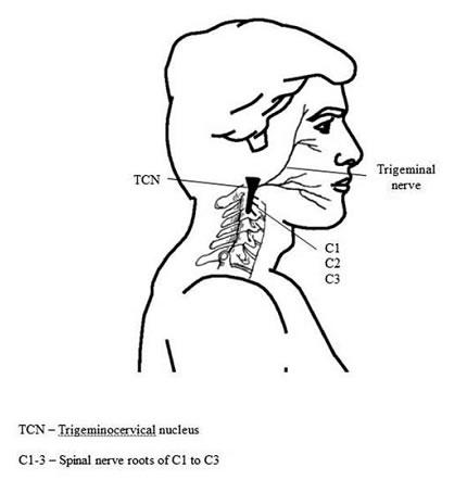 Cefalea cervicogénica. Revisión bibliográfica