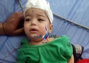 استخراج سيخ من جمجمة طفل بمستشفى الجامعه بطنطا |