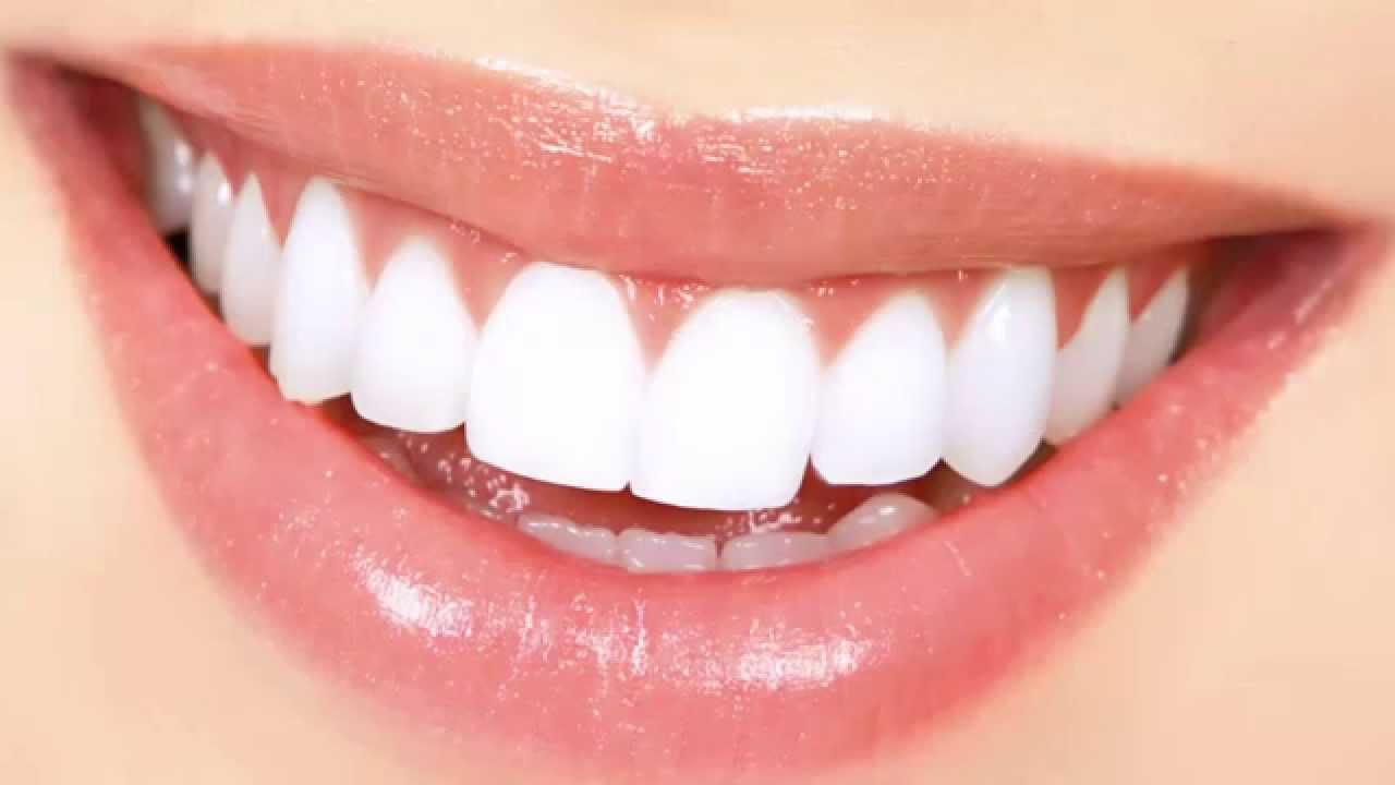 مراحل تسوس الأسنان وطرق العلاج والوقاية منها وطرق علاجها بالمنزل.