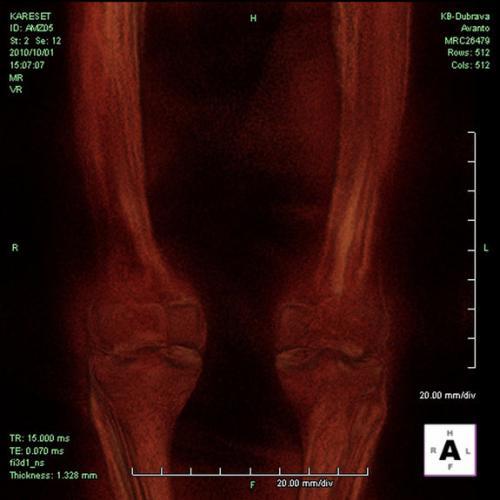 On remarque l'état des genoux de la momie, très abîmés. Il devait en souffrir énormément