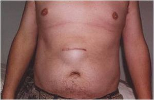 Pain In and Around the Belly Button Infections Discharge ...