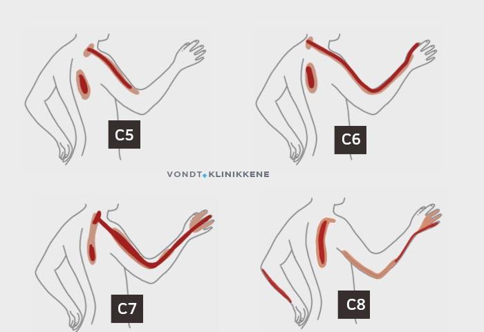 Et bilde som viser ulike dermatomer ved nakkeprolaps