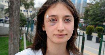 """Turquia: grupo ataca ato do Dia da Mulher gritando """"Alá é grande"""""""